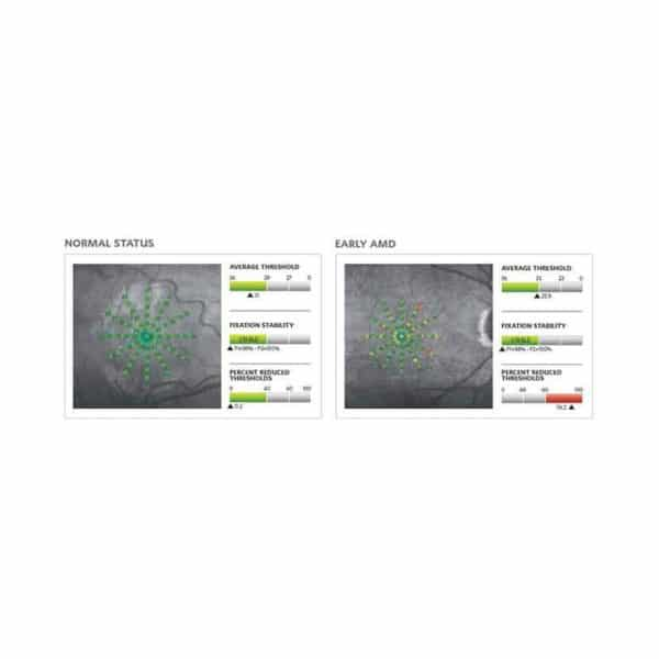 Centervue Maia  Confocal Microperimetry